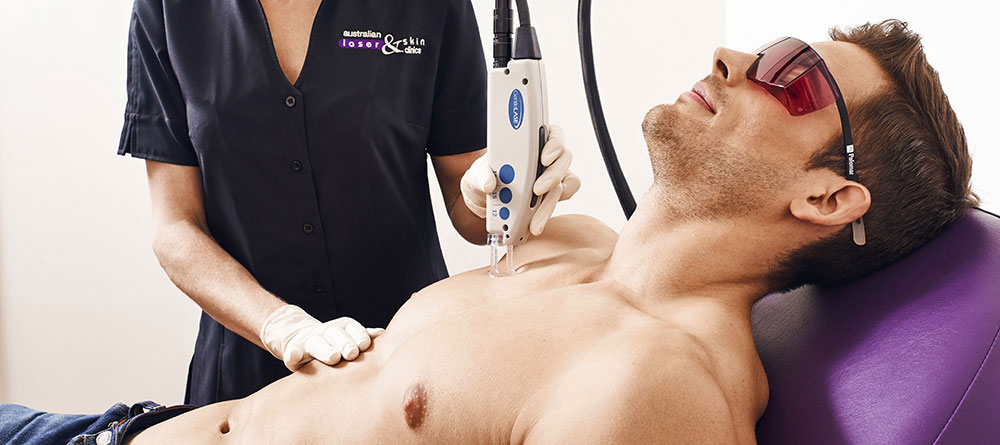 LaserHairRemoval_Men