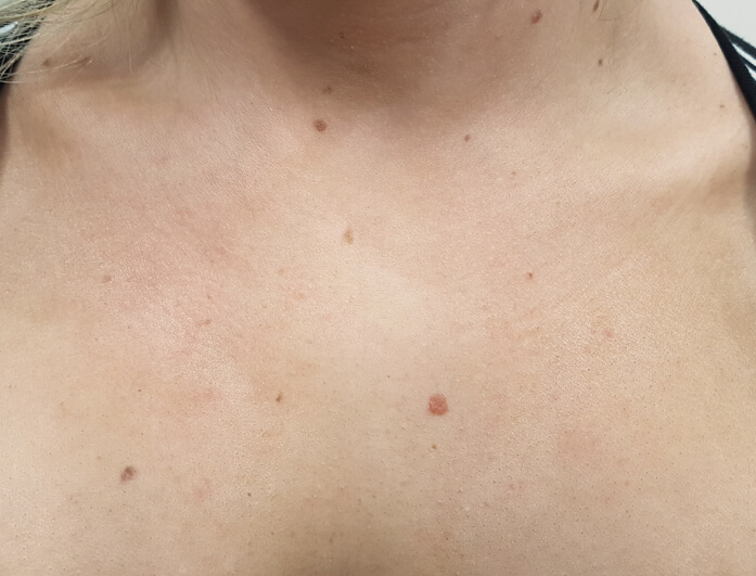 Cryotherapy Skin Tag And Wart Removal In Melbourne