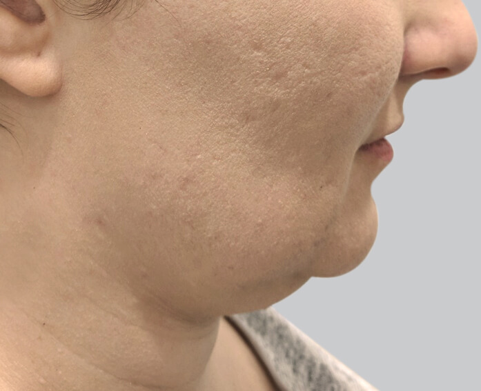 Double Chin Removal, Injections & Treatment | Australian