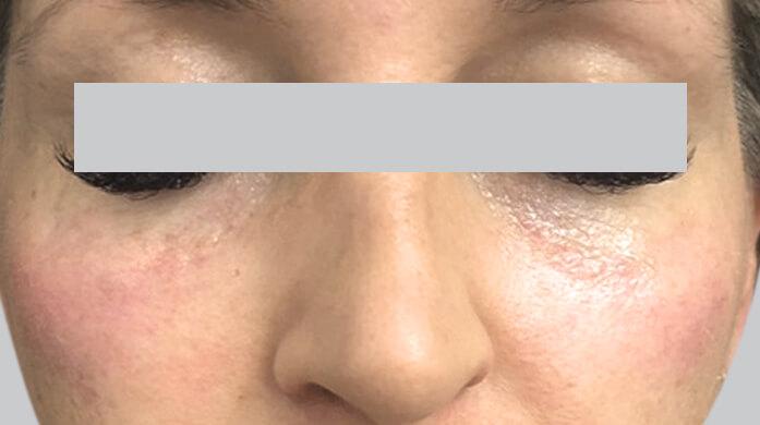 Dermal & Lip Fillers Melbourne | Australian Laser & Skin Clinics