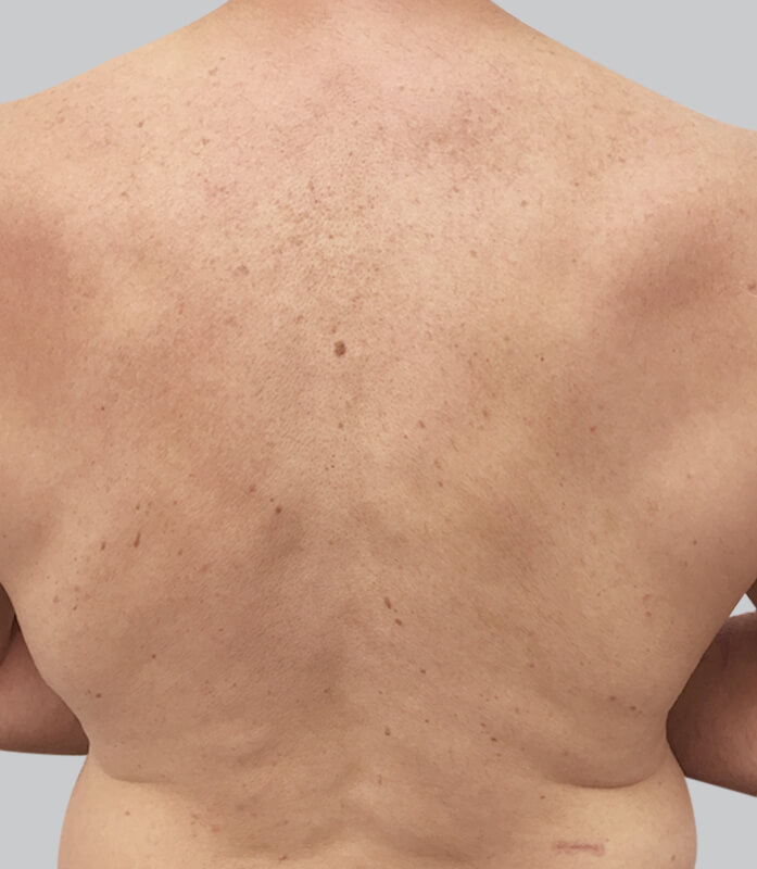 Laser Hair Removal Clinic Melbourne Cbd Laser Hair Removal Costs