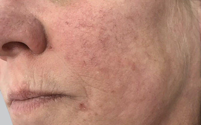 Laser Facial Treatments Melbourne | Australian Laser & Skin