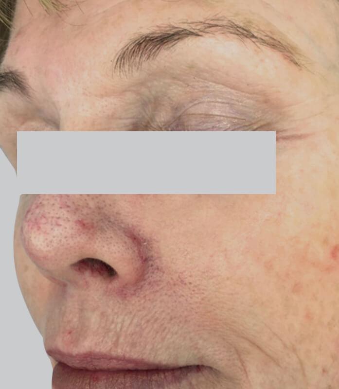 Facial Rejuvenation Clinic | Australian Laser & Skin Clinics