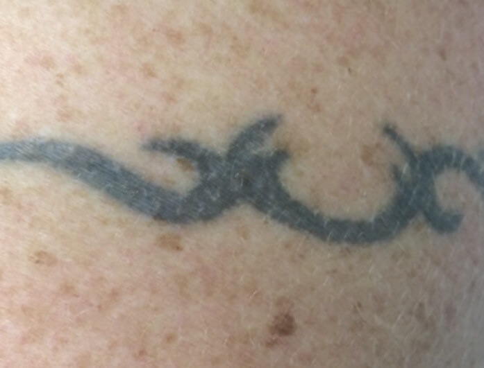 Laser Tattoo Removal in Melbourne   Laser Tattoo Removal Cost