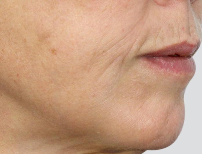 Thread Lift Treatment in Melbourne   Australian Laser & Skin