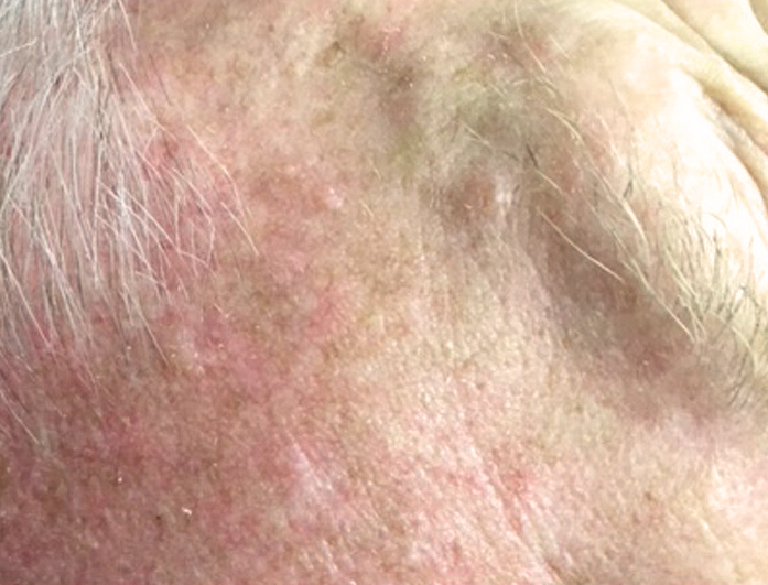 Cryotherapy - Skin Tag and Wart Removal in Melbourne