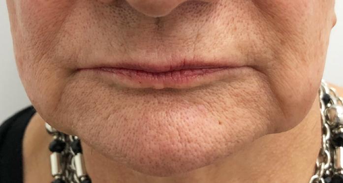 Thread Lift Treatment in Melbourne | Australian Laser & Skin