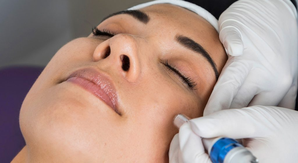 Skin Needling Aftercare - Aftercare Tips That You Need To Know